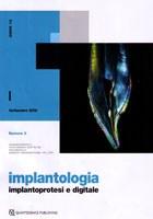 """Pubblicazione articolo """"Compensazione con protesi avvitata di un marcato disallineamento di due assi implantari. Case report"""""""